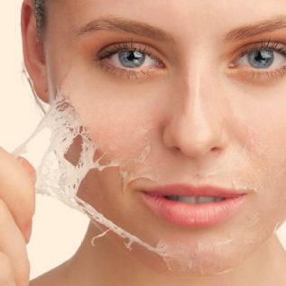 faciales-peeling-quimico